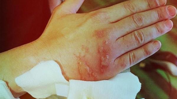 Ожог руки от Борщевика