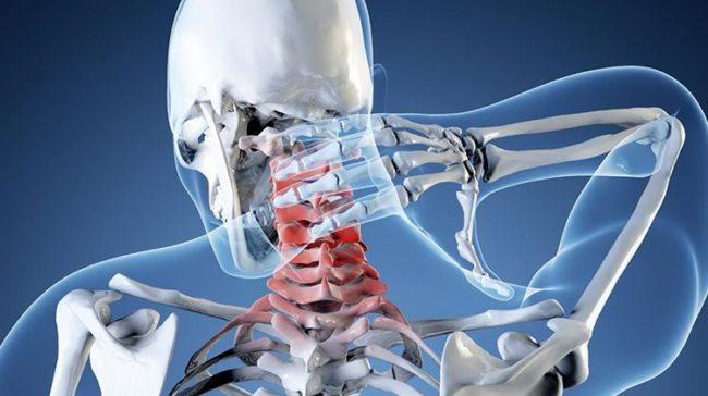 Излучение рентгена