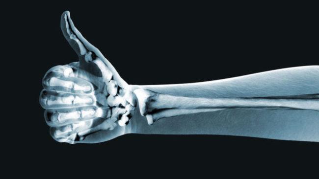 Применение рентгена